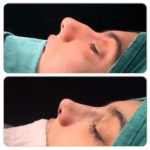 Nose Filling (Non-Surgical Nose Shaping)